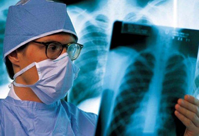 Эффективно ли Покров противостоит туберкулезу и ВИЧ?