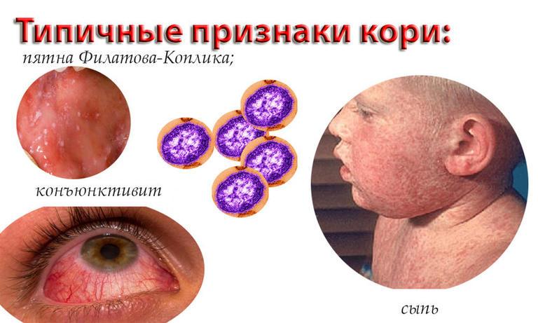 Эпидемия кори в Украине: что нужно знать об опасном вирусе?